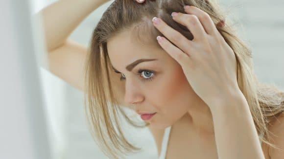 Calvície feminina: como cuidar deste problema?