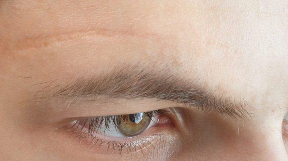 Cicatrizes: como amenizar a aparência das marcas na pele