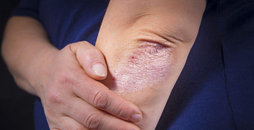 Psoríase: Conheça os tipos e sintomas da doença