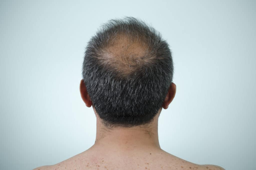 Alopecia ou perda de cabelo