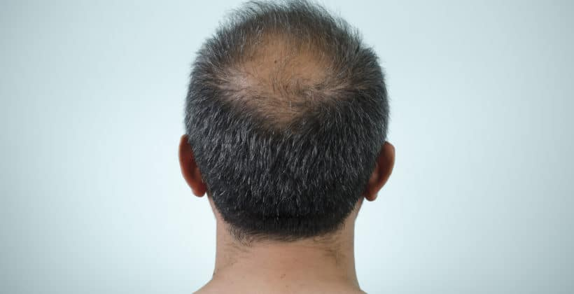 Alopecia: conheça suas características e definição