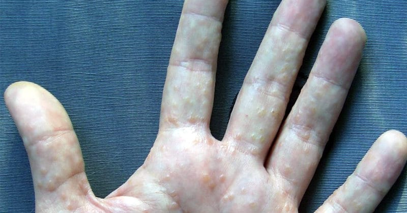 Disidrose: Causas, sintomas e tratamento