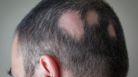 Alopecia Areata: o que é, diagnóstico e tratamento