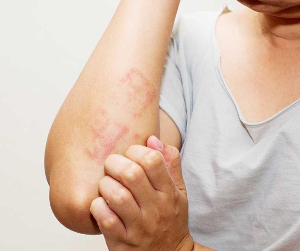 Dermatite Atópica: conheça os sintomas e tratamentos