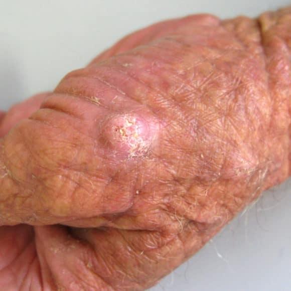 Carcinoma Espinocelular: sintomas, diagnóstico e tratamento