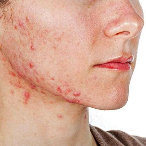 Isotretinoína: entenda a ação do medicamento no tratamento da acne