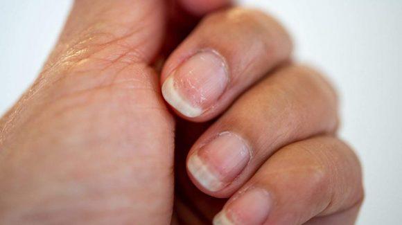 Síndrome das unhas frágeis: o que causa e como tratar o enfraquecimento das unhas?